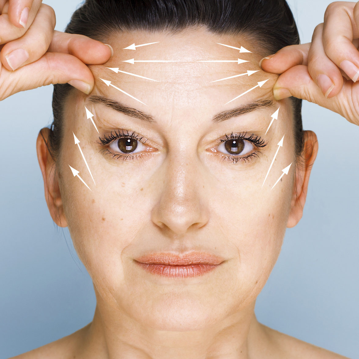 Fuentes Cosmetic Surgery Procedure Brow Lift