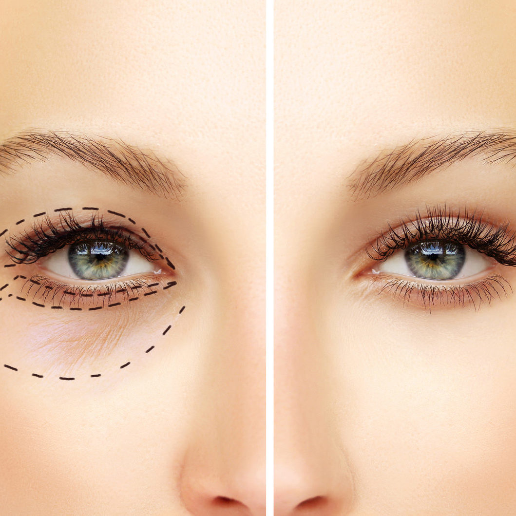 Fuentes Cosmetic Surgery Procedures Blepharoplasty