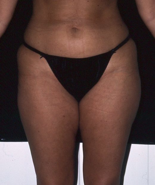Liposuction Before And After - Fuentes Cosmetic Surgery